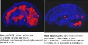 мозг до и после EMDR